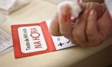 Cientistas testam vacina contra HIV, estudo é o mais promissor em décadas