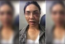 """Motorista de aplicativo se finge de morta duas vezes em assalto para sobreviver: """"Diziam que iam me enforcar"""""""