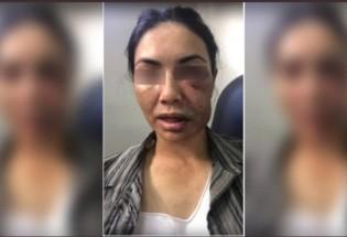 Motorista ficou com o rosto deformado pelas agressões (CRÉDITO: REPRODUÇÃO)