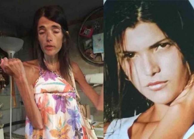 Atualmente, Simone Brasil luta contra a anorexia (CRÉDITO: REPRODUÇÃO/INTERNET)